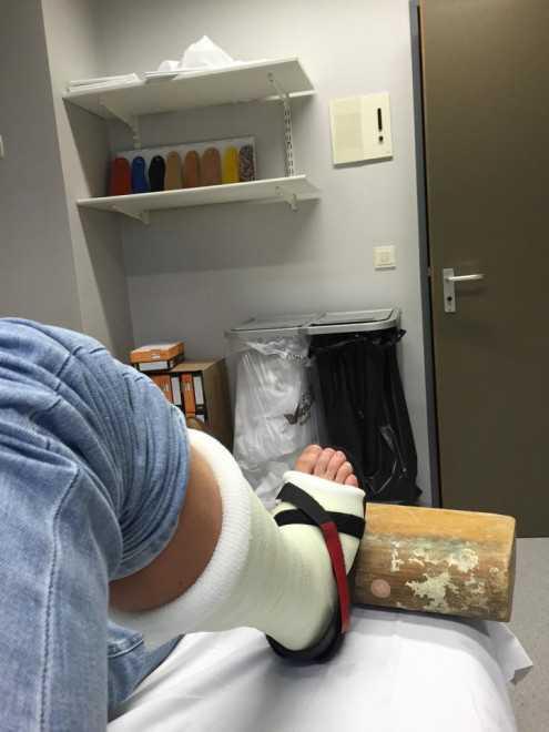 Kenneth Vandendriessche gips voetbreuk